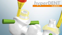 hyper_dent